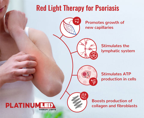 How Does Red Light Therapy Treat Psoriasis?