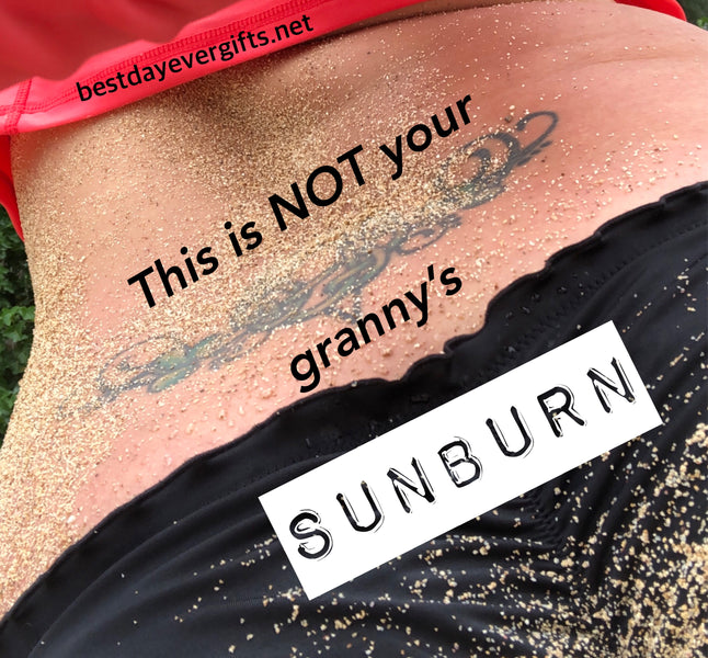 This Is Not Your Granny's Sunburn