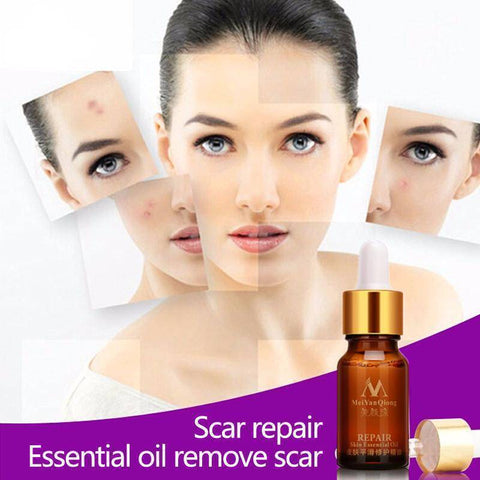 Image of Lavender Essential Oil Skin Treatment