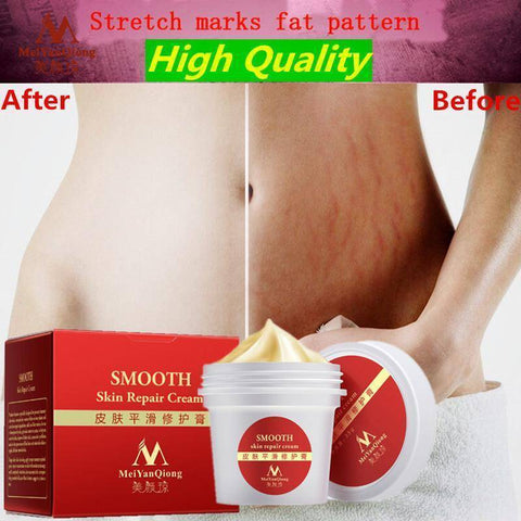 Image of Stretch Mark and Scar Repair Cream