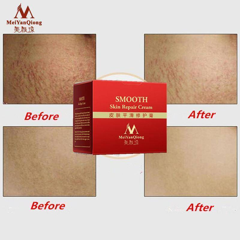 Stretch Mark and Scar Repair Cream