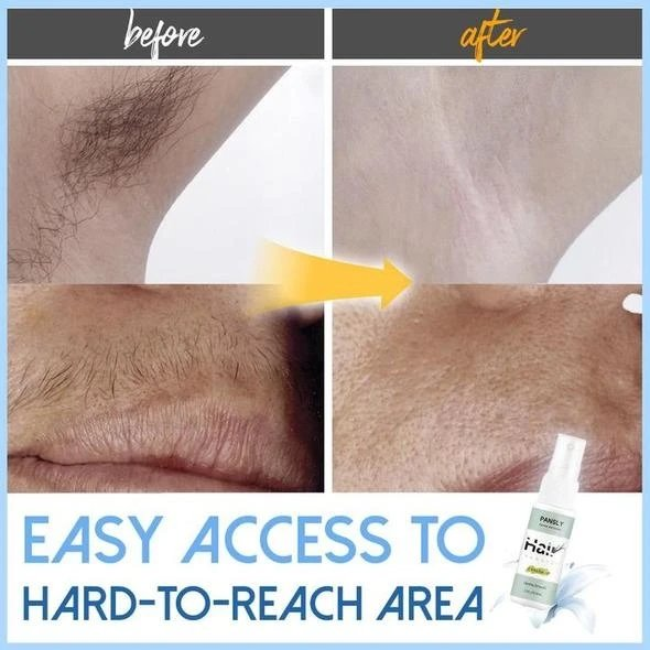 New 2020 Wonder Hair Removal Spray - Replace Your Shave Cream For Good! - Gear Elevation
