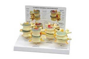 4 Stages Of Lumbar Degeneration - Model
