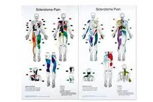 Sclerotome Pain Charts 22 X 36&quot Set Of 2