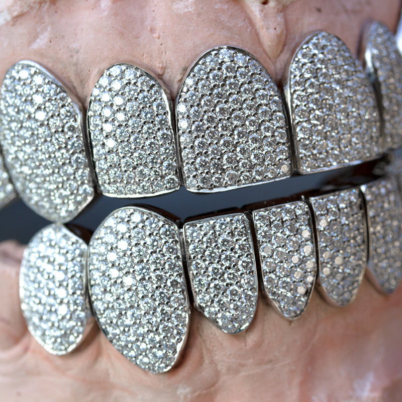Fully Iced Out Diamond Grills - Fenom & Co.