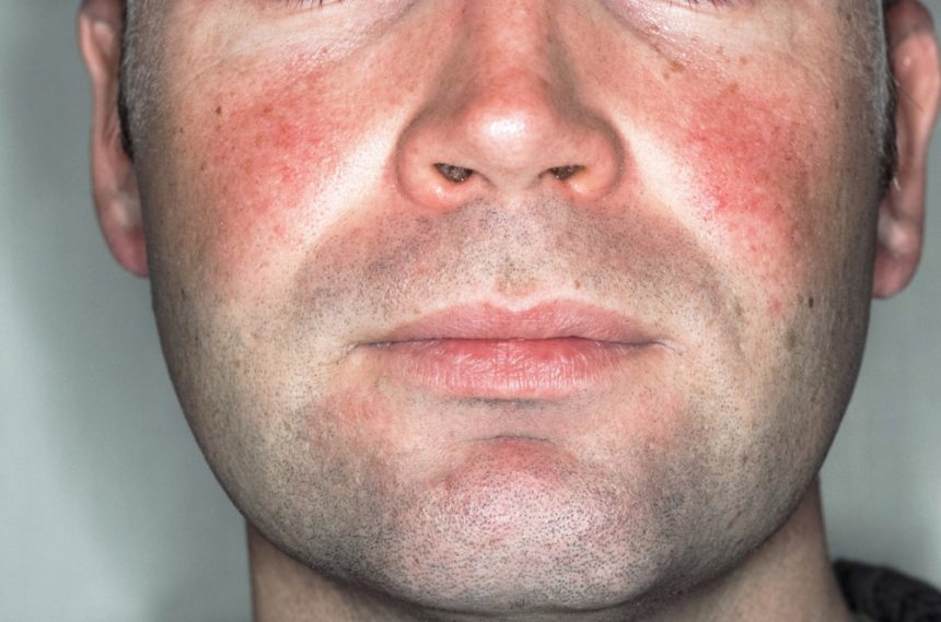 how-to-clear-rosacea