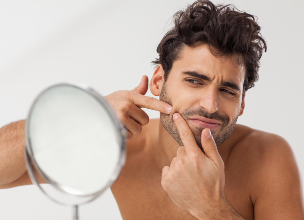 how-to-get-rid-of-beard-acne