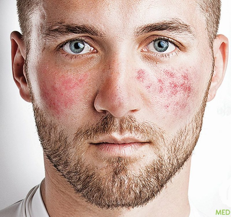 what-is-rosacea