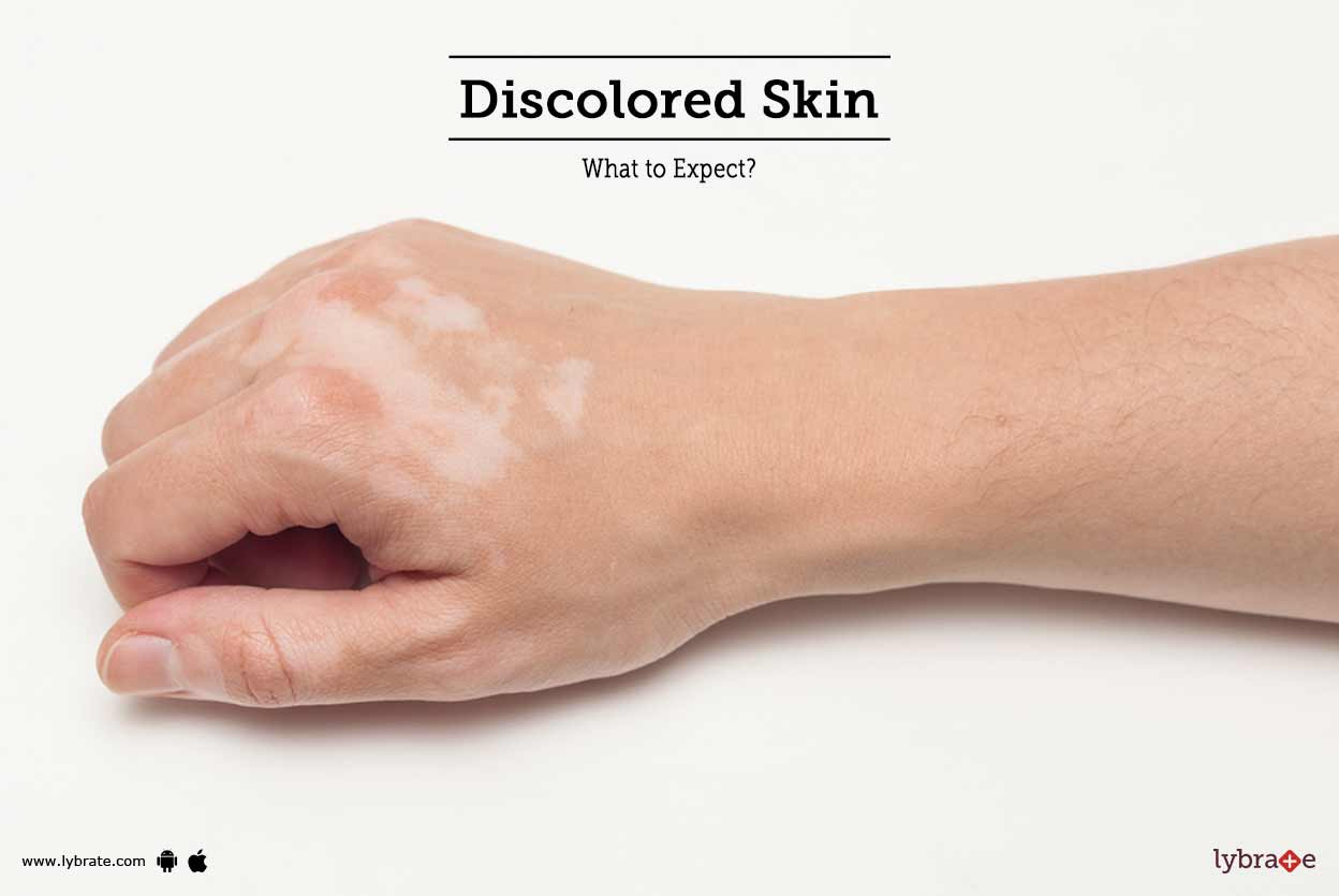 how-to-get-rid-of-skin-discoloration