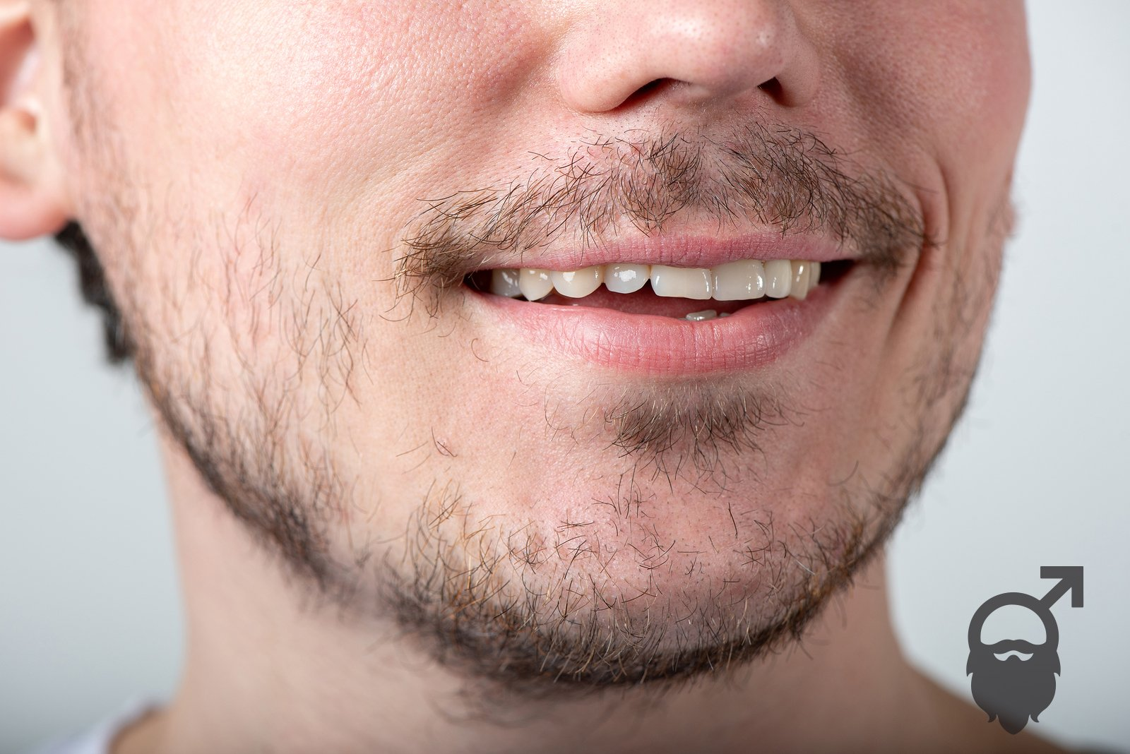 why do you have a patchy beard