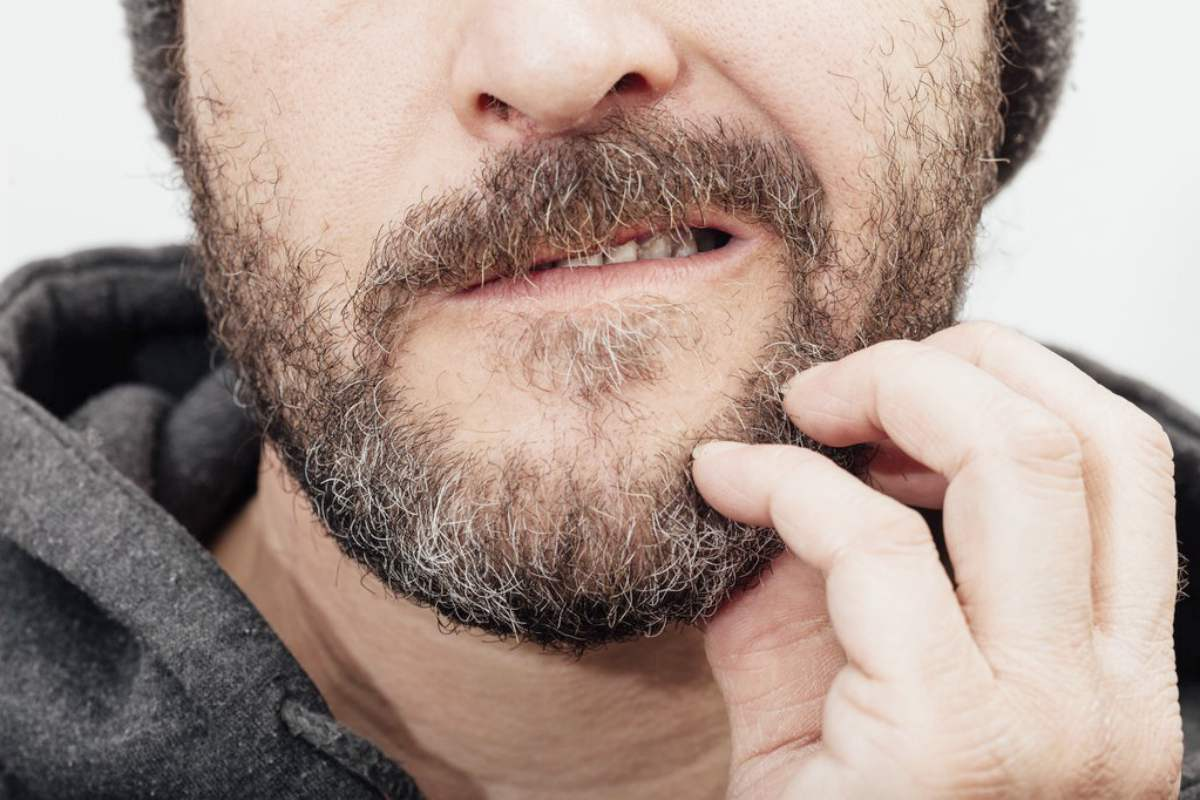 why does my beard itch