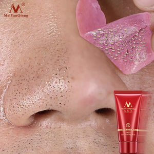 Deep Cleansing Purifying Strawberry Peel Mask  Acne and Blackhead Remover