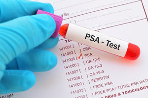 The TRUTH About PSA Testing