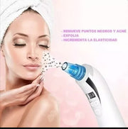 Extractor Limpiador Facial Digital Recargable Puntos Negros