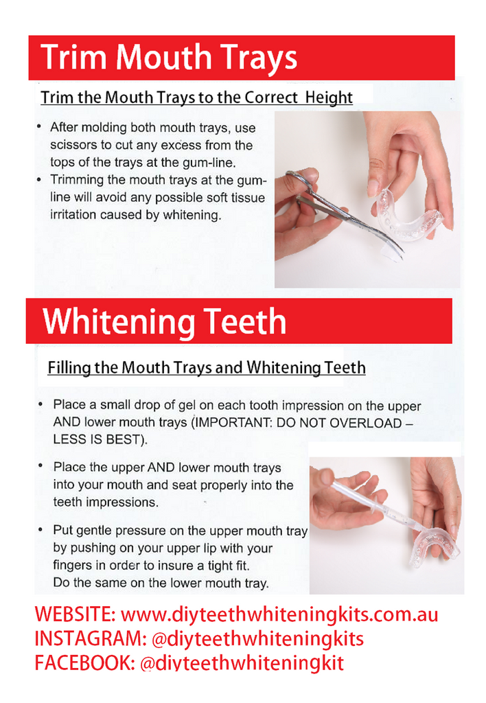 DIY Teeth Whitening Kits | Teeth Whitening Thermo Moulding Mouth Tray Instructions