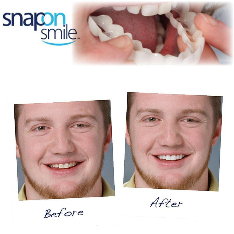Snap On Smile Instant Smile Veneer