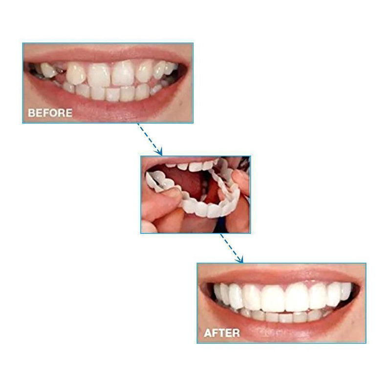Magic Smile Teeth Brace - mygeniusgift