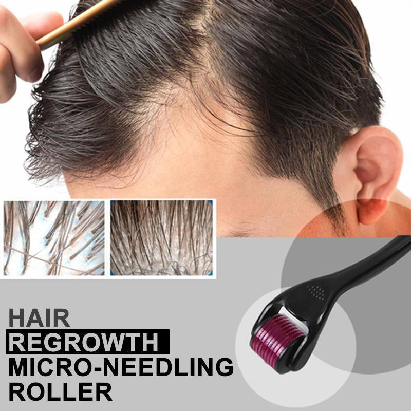 Titanium Needle Roller -Hair Re-Activating Roller