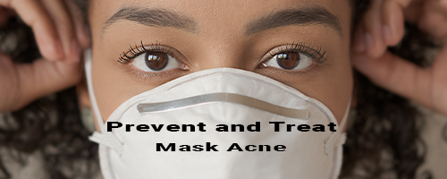 6 Things You Can Do Today to Stop Mask Acne (Maskne) in Its Tracks