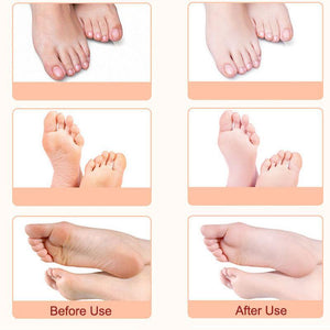Foot Peeling Mask Set