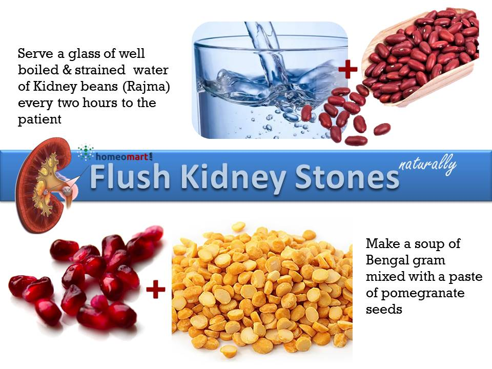 Natural Remedies to pass Kidney Stones fast at Home