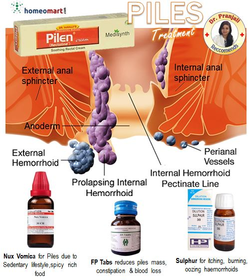 Doctor recommended homeopathic medicines for treatment of Piles