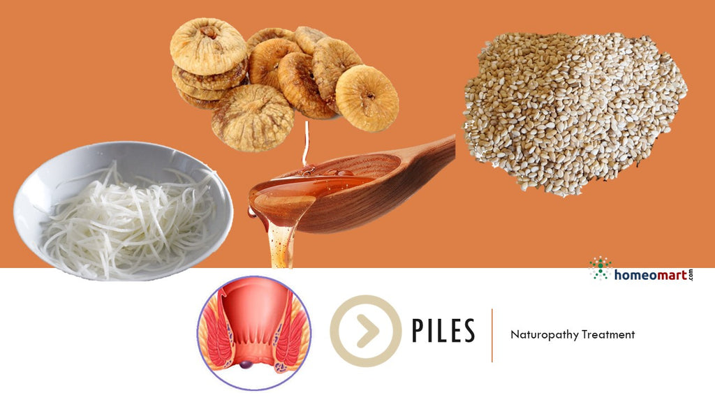 Piles Treatment at Home - Try these natural remedies