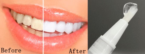 Teeth Whitening Pen Before & After