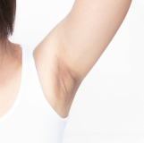 A photo of dark discoloration of the underarm area due to baking soda
