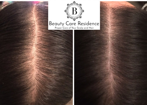 Natural Hair Growth Stimulation Toronto   Beatuy Care Residence