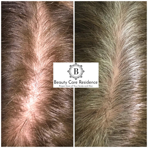 Hair & Scalp Treatment Toronto   Before & After   Beauty Care Residence