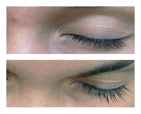 Xlash Eyelash Growth Serum Before And After - 1