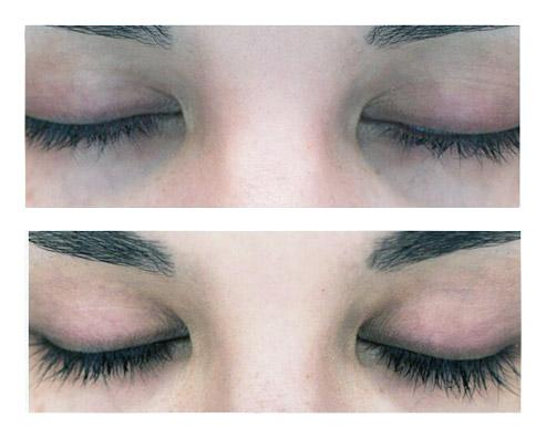 before and after xlash eyelash growth serum pro