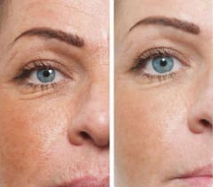 Maxclinic Cirmage Before After