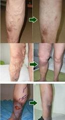 Varicose Vein Cream Effect