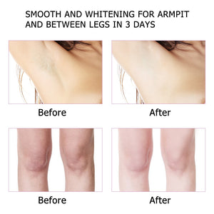 Armpit Whitening Body Creams Between Legs Knees Private Parts Whitening Formula Underarm Whitener Intimate Body Skin Care Cream