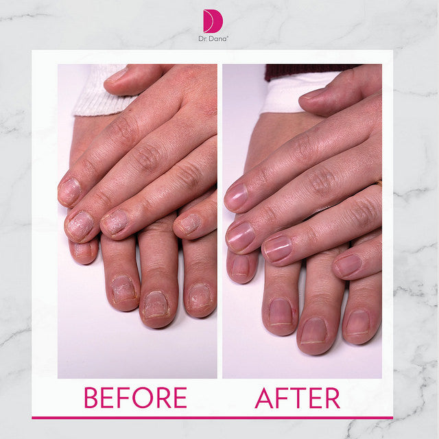 DR. DANA® NAIL CARE SYSTEM - Love Beauty Co