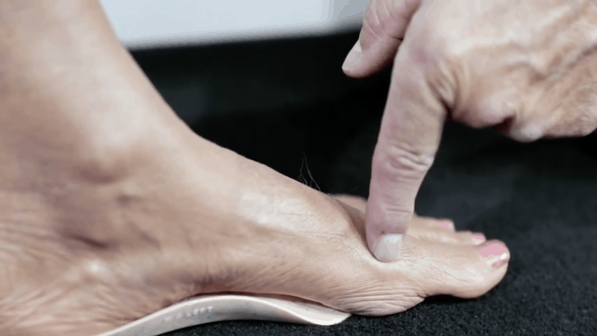 ball of your foot and sizing orthotics
