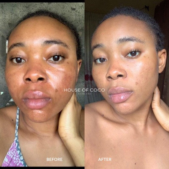 05- Skin Irritation (Redness) & Hyperpigmentation