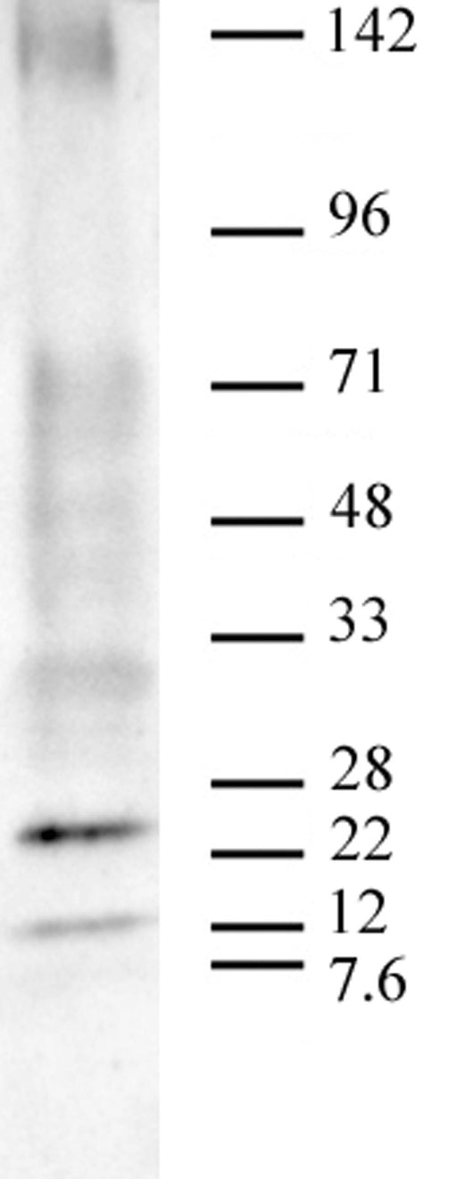 AbFlex® Ubiquitin antibody (rAb), sample
