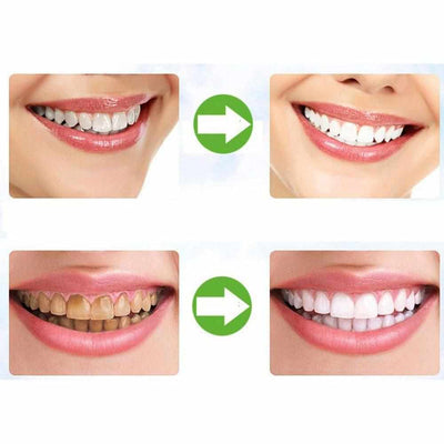 Teeth Whitening Charcoal Powder-Teeth Whitener-Golonzo