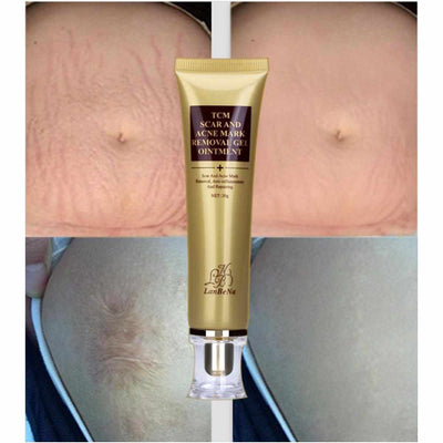 Acne and Scar Removal Gel-Conductivity Gel and Lotion-Golonzo