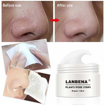 Blackhead Remover Cream and Nose Mask-Acne Treatment and Kits-Golonzo