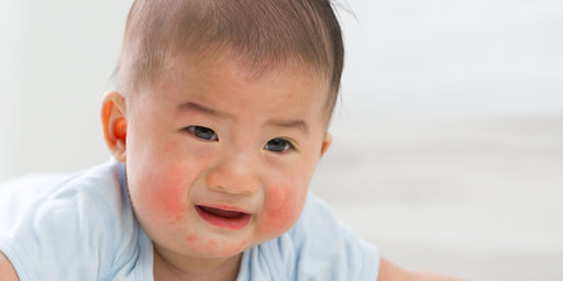 Why does eczema put your baby at greater risk for developing food allergies?