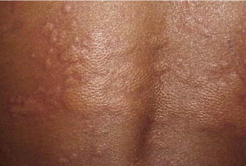 What does a food allergy rash look like?