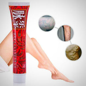 Magical Varicose Veins Removal Cream