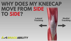 Why Your Kneecap Moves from Side to Side: Patella Instability & Dislocation Explained