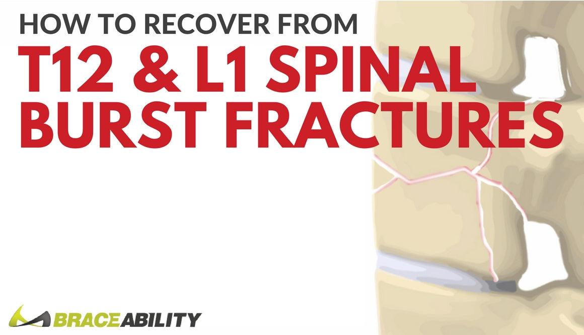 How Can I Treat A T12 Or L1 Thoracic Spinal Burst Fracture