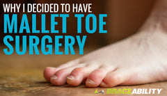 Why I Decided to Have Mallet Toe Surgery