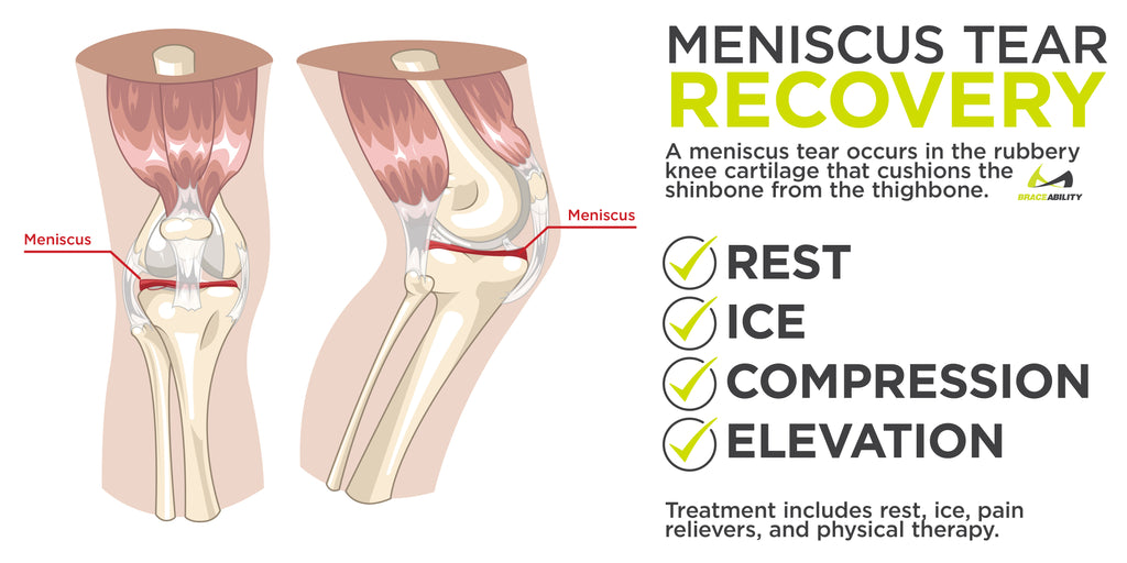 a meniscus tear recovery begins by taking pressure off of the knee followed by ice and compression with our cold therapy knee brace